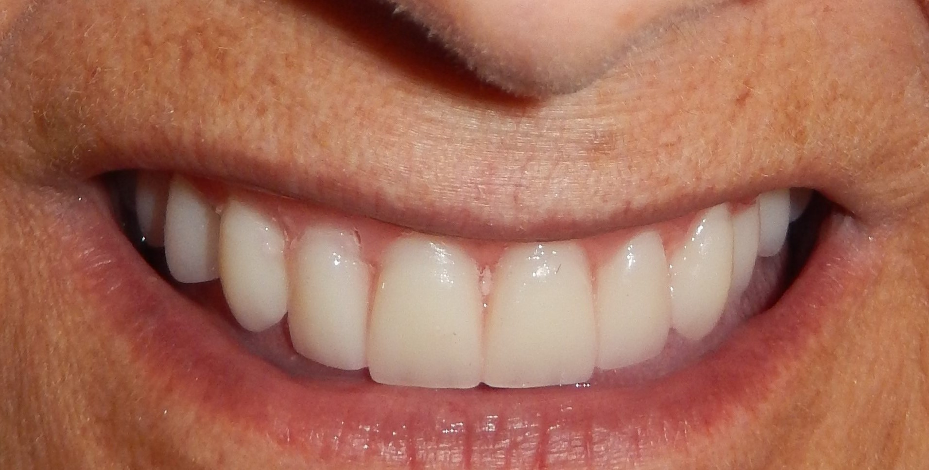 After Same Day Implant Supported Denture